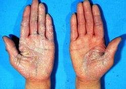 冬季银屑病患者如何护理